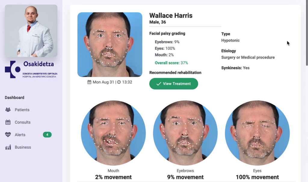 Facial palsy grading with artificial intelligence
