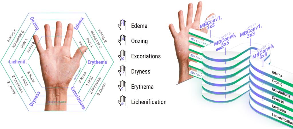 Automatic scoring for atopic dermatitis