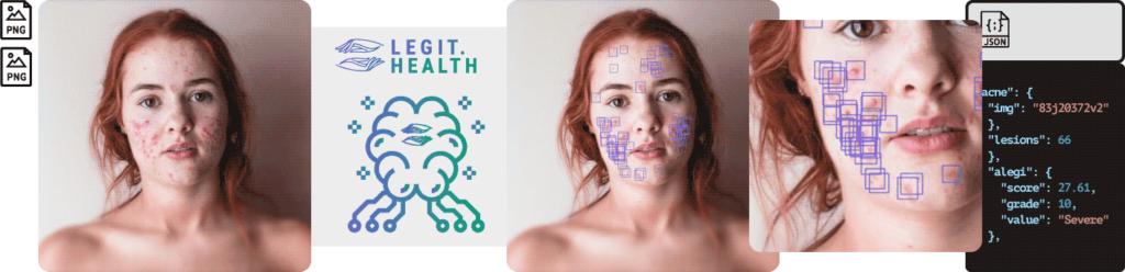 API para el diagnóstico de acné