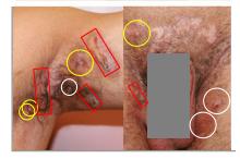 AIHS4 IHS4 = 27, Severe HS Hidradenitis Suppurativa
