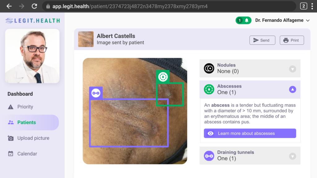 AIHS4, Hidradenitis suppurativa, Automatic Scoring Sistem, IHS4